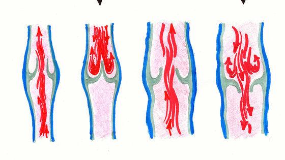 Что происходит с веной при варикозной болезни